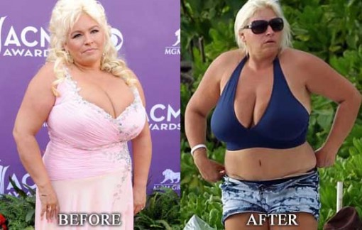 Beth Chapman Surgery Before and After