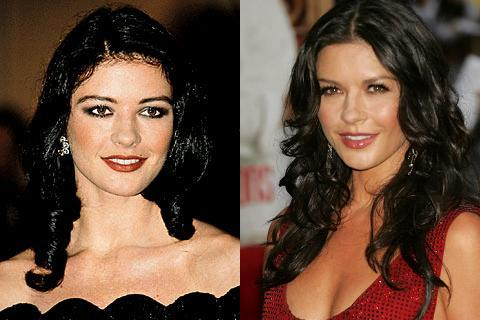 Catherine Zeta-Jones Surgery Before After