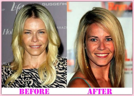 Chelsea Handler Body Transformation