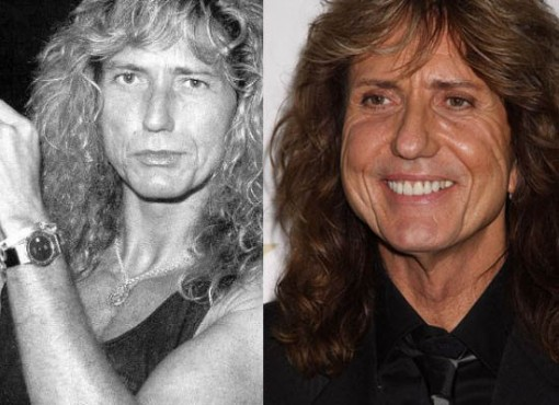 David Coverdale Surgery Before and After