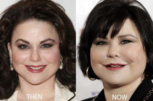 Delta Burke Plastic Surgery Before After Breast Implants