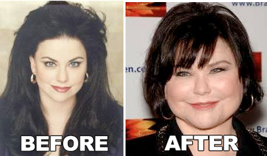 Delta Burke Plastic Surgery Before After