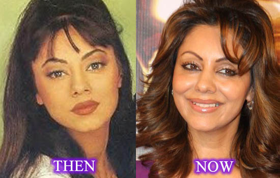 Gauri Khan Plastic Surgery Before After