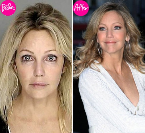Heather Locklear Surgery Before and After