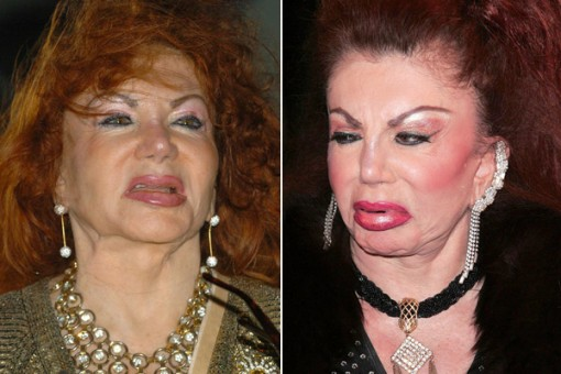 Jackie Stallone Surgery Before and After