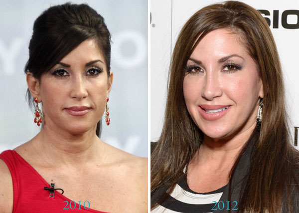 Jacqueline Laurita Surgery Before and After