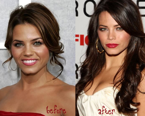 Jenna Dewan Surgery Before and After