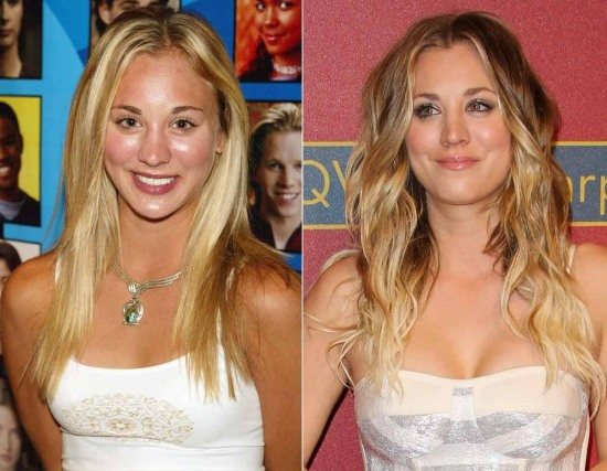 Kaley Cuoco Plastic Surgery Before and After 1