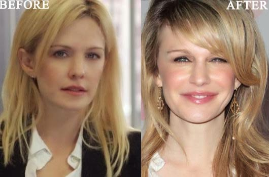 Kathryn Morris Plastic Surgery Before and After 1