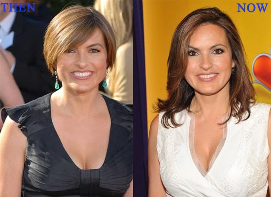 Mariska Hargitay Plastic Surgery Before and After 1