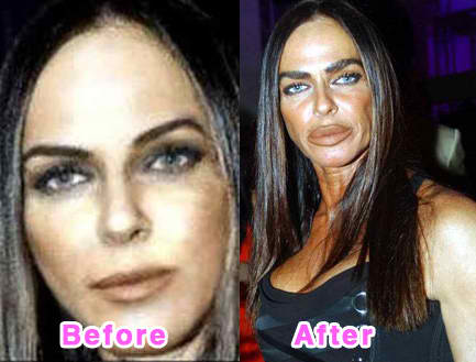Michaela Romanini Plastic Surgery Before and After 1