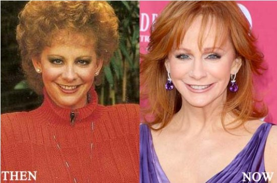 Reba Mcentire Plastic Surgery Before and After 1
