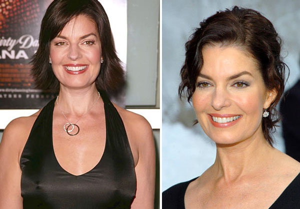 Sela Ward Plastic Surgery Before After, Breast Implants