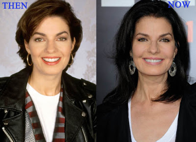 Sela Ward Surgery Before and After