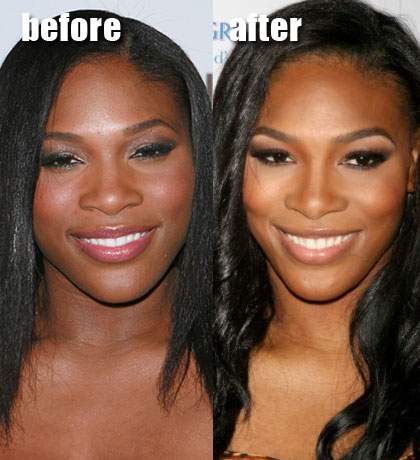 Serena Williams Surgery Before and After
