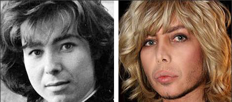 Sergey Zverev Plastic Surgery Before and After