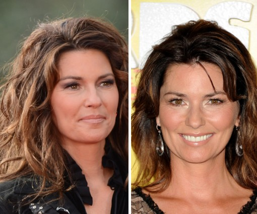 Shania Twain Plastic Surgery Before and After