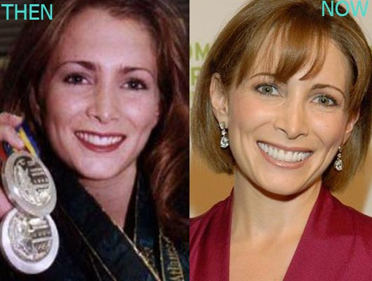 Shannon Miller Surgery Before and After