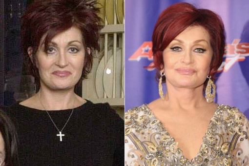 Sharon Osbournes Body Transformation