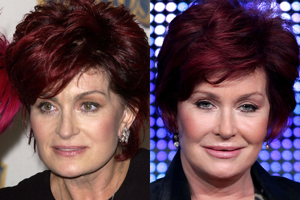 Sharon Osbournes Surgery Before and After