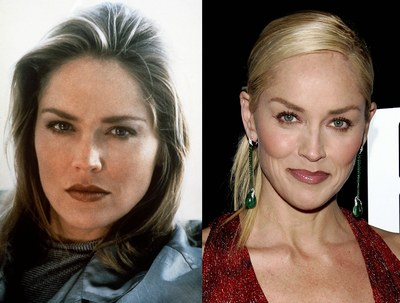 Sharon Stone Surgery Before and After