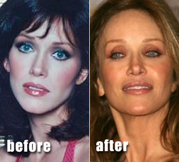Tanya Roberts Plastic Surgery Before After