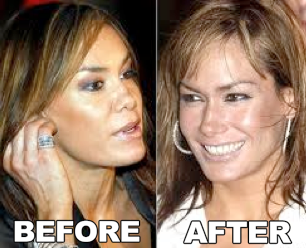 Tara Palmer Tomkinson Surgery Before and After