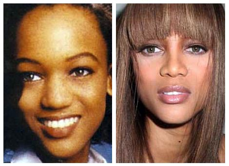Tyra Banks Surgery Before and After