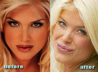 Victoria Silvstedt Plastic Surgery Before and After