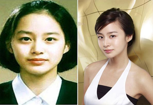 kim tae hee Plastic Surgery Before and After 1