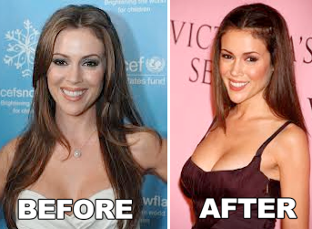 Alyssa Milano Plastic Surgery Before After