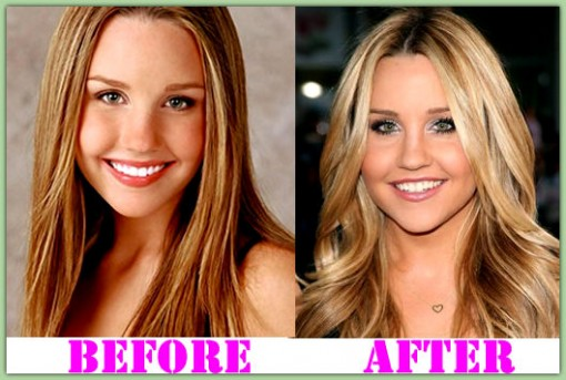 Amanda Bynes Body Transformation