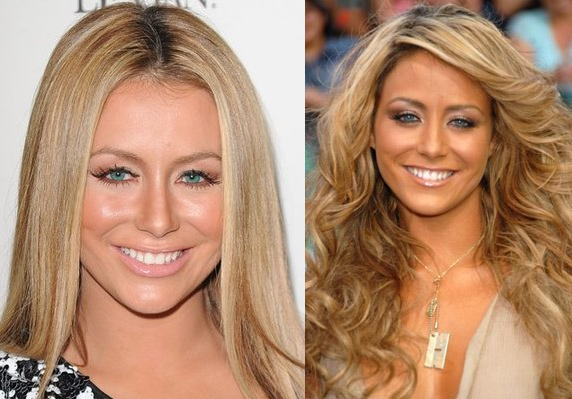 Aubrey O Day Plastic Surgery Before After Breast Implants