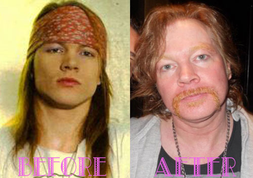 Axl Rose Plastic Surgery Before After