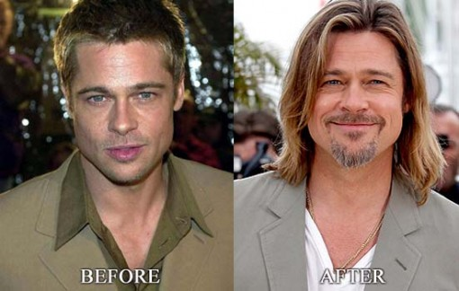 Brad Pitt Plastic Surgery Before After