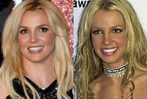 Britney Spears Plastic Surgery Before After