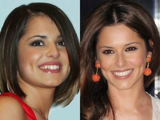 Cheryl Cole Plastic Surgery Before After