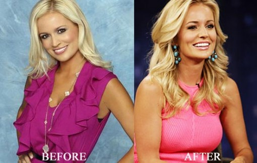 Emily Maynard Body Transformation