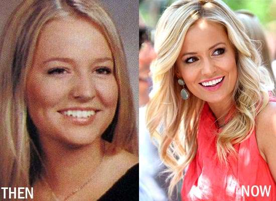 Emily Maynard Plastic Surgery Before After