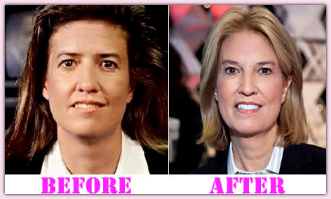Greta Van Susteren Body Transformation