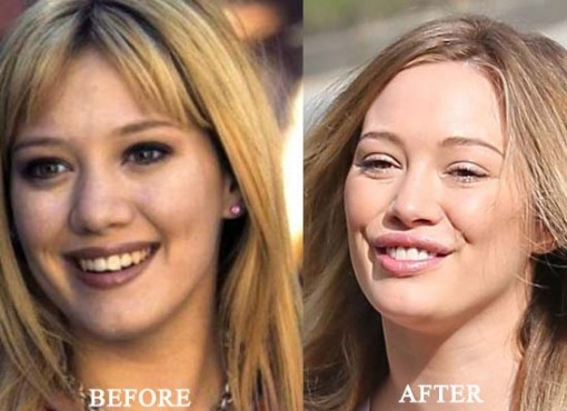 Hilary Duff Plastic Surgery Before After