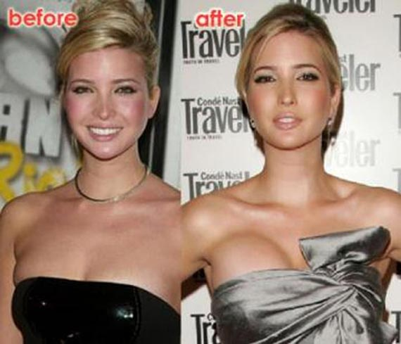 ivanka trump plastic surgery before after breast implants