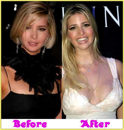 Ivanka Trump Plastic Surgery Before After