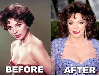 Joan Collins Plastic Surgery Before After