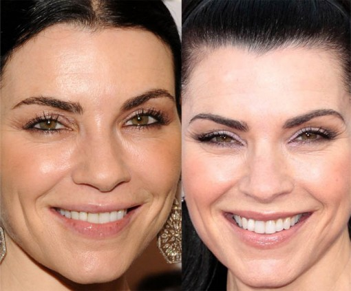 Julianna Margulies Body Transformation