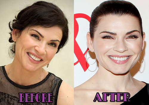 Julianna Margulies Plastic Surgery Before After