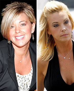 Kate Gosselin Plastic Surgery Before After