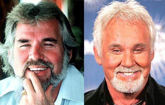 Kenny Rogers Plastic Surgery Before After Body Size