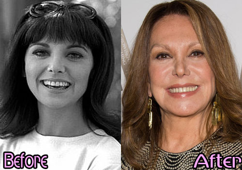 Marlo Thomas Plastic Surgery Before After