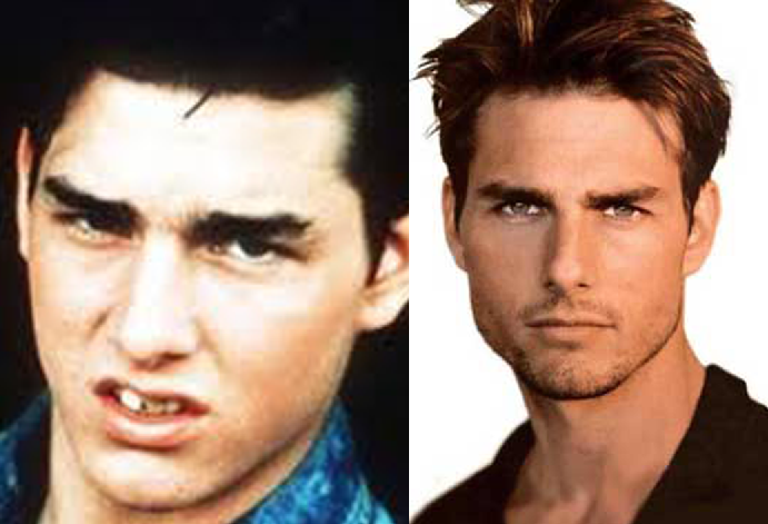 Tom Cruise Plastic Surgery Before After